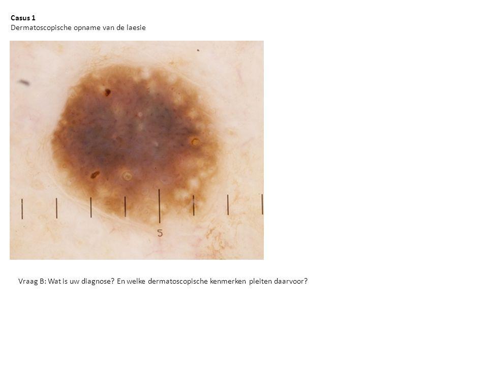 Casus 1 Dermatoscopische opname van de laesie Vraag B: Wat is uw diagnose? En welke dermatoscopische kenmerken pleiten daarvoor?