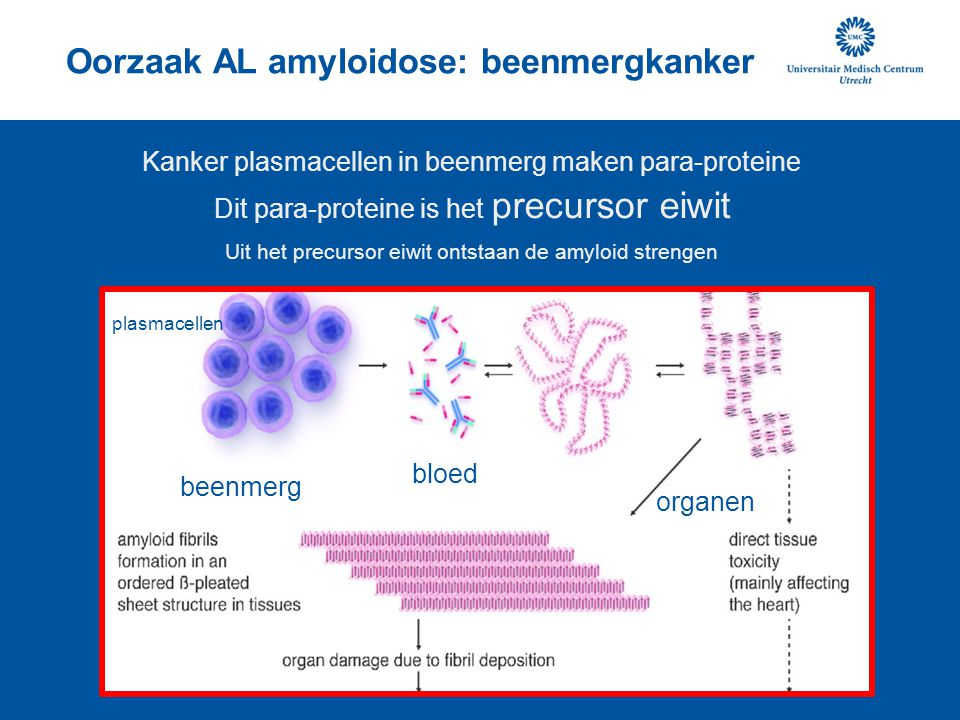 Oorzaak AL amyloidose: beenmergkanker Kanker plasmacellen in beenmerg maken para-proteine Dit para-proteine is het precursor eiwit Uit het precursor e