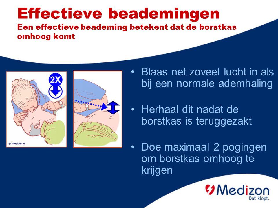 Effectieve beademingen Een effectieve beademing betekent dat de borstkas omhoog komt Blaas net zoveel lucht in als bij een normale ademhaling Herhaal