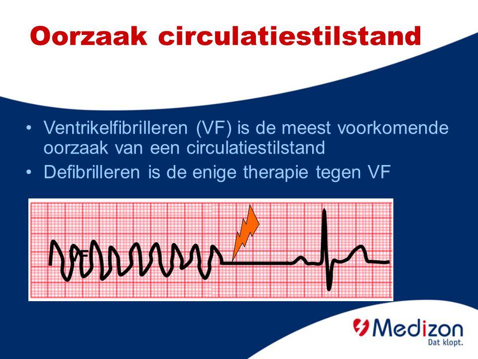 Oorzaak circulatiestilstand Ventrikelfibrilleren (VF) is de meest voorkomende oorzaak van een circulatiestilstand Defibrilleren is de enige therapie t