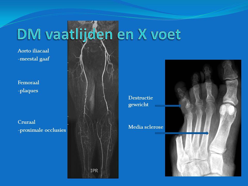 Aorto iliacaal -meestal gaaf Femoraal -plaques Cruraal -proximale occlusies Media sclerose Destructie gewricht