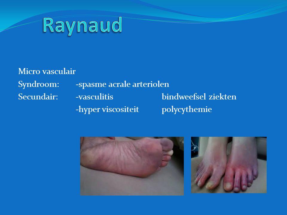 Micro vasculair Syndroom: -spasme acrale arteriolen Secundair: -vasculitisbindweefsel ziekten -hyper viscositeitpolycythemie