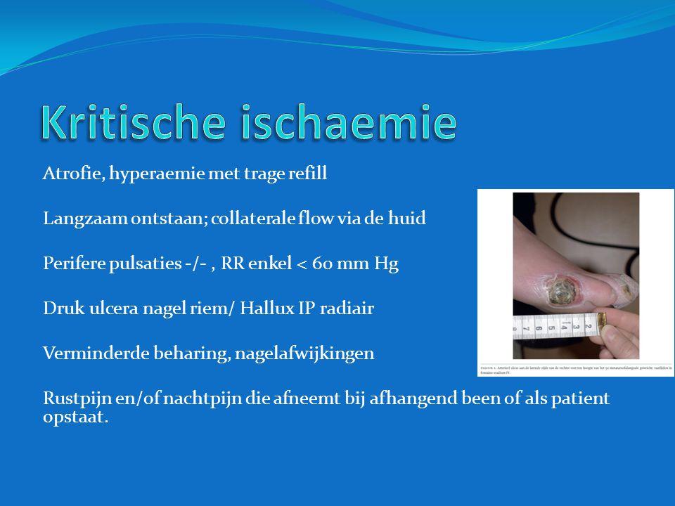 Atrofie, hyperaemie met trage refill Langzaam ontstaan; collaterale flow via de huid Perifere pulsaties -/-, RR enkel < 60 mm Hg Druk ulcera nagel rie