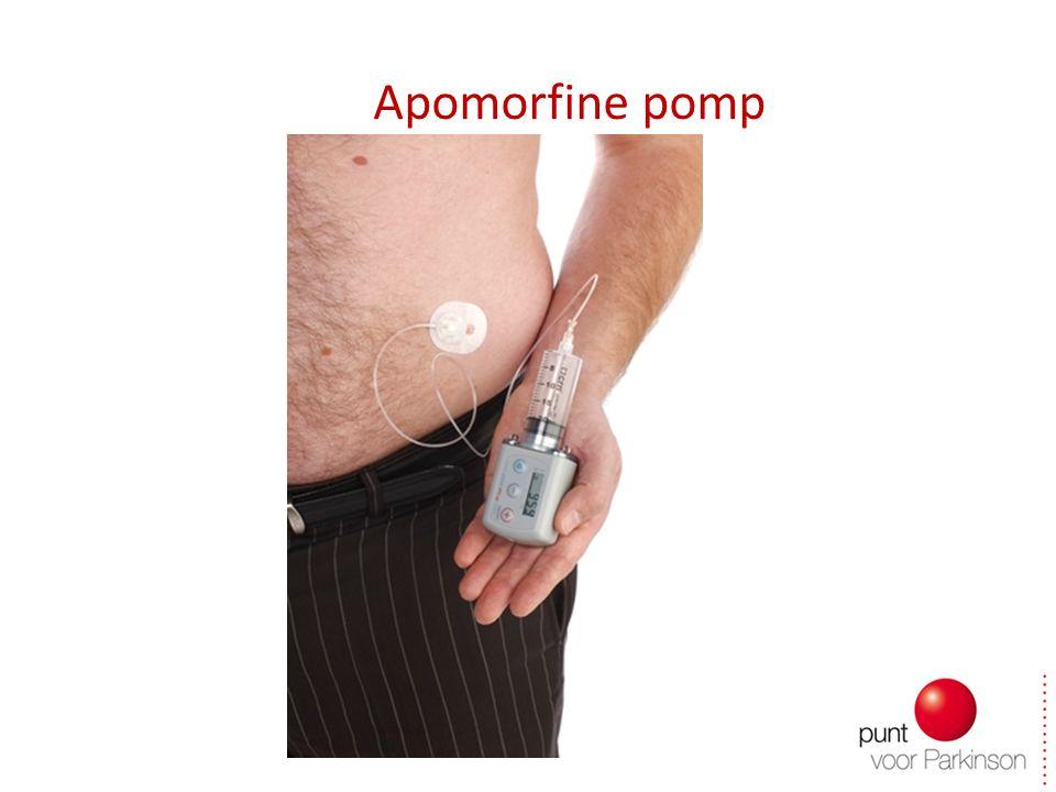 Apomorfine pomp