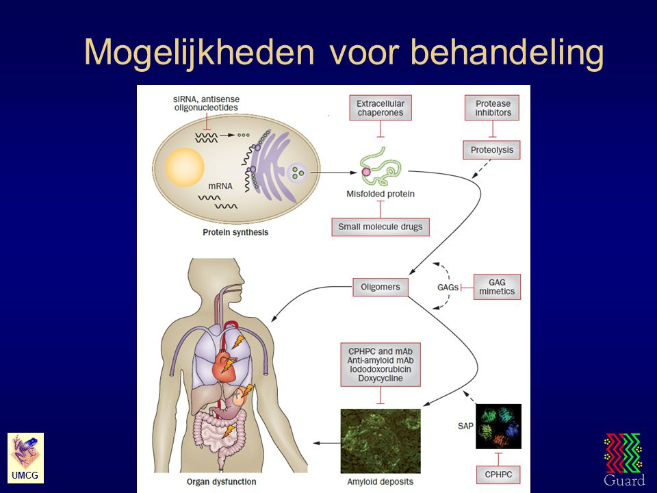 Guard UMC Groningen – Rheumatology & Clinical Immunology UMCG Mogelijkheden voor behandeling