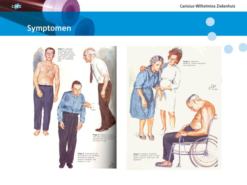 Ziekte van Parkinson: klinische criteria Bradykinesie (vertraging van beweging) vereist, + minimaal één ander hoofdsymptoom : Rusttremor (liefst 'geldtel' aspect) Rigiditeit (loden pijp; tandrad) Houdingsinstabiliteit / vallen