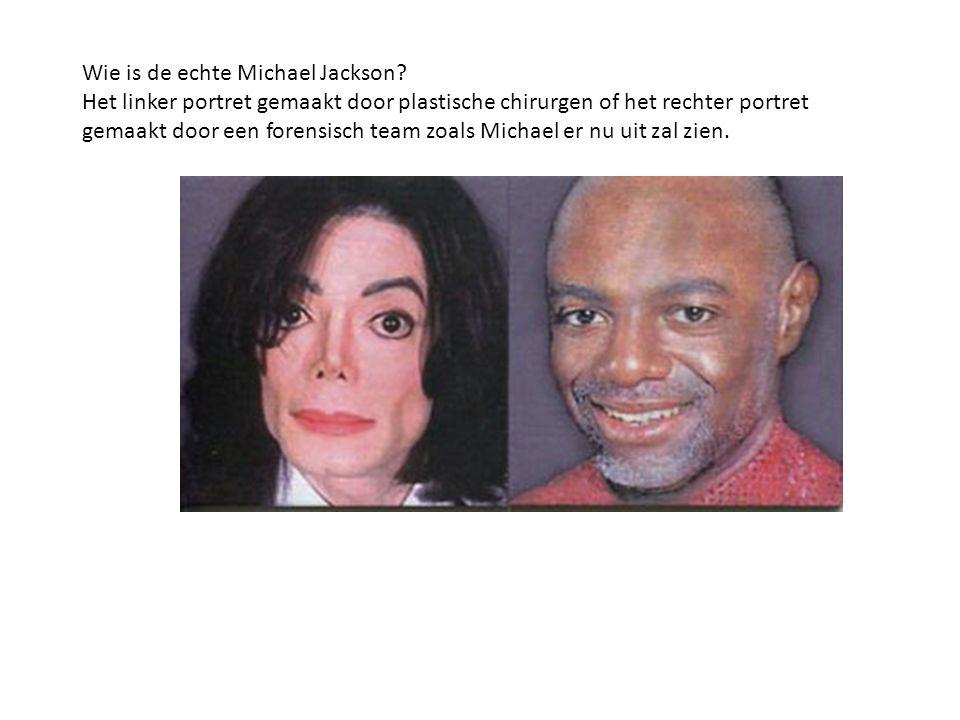 Wie is de echte Michael Jackson? Het linker portret gemaakt door plastische chirurgen of het rechter portret gemaakt door een forensisch team zoals Mi