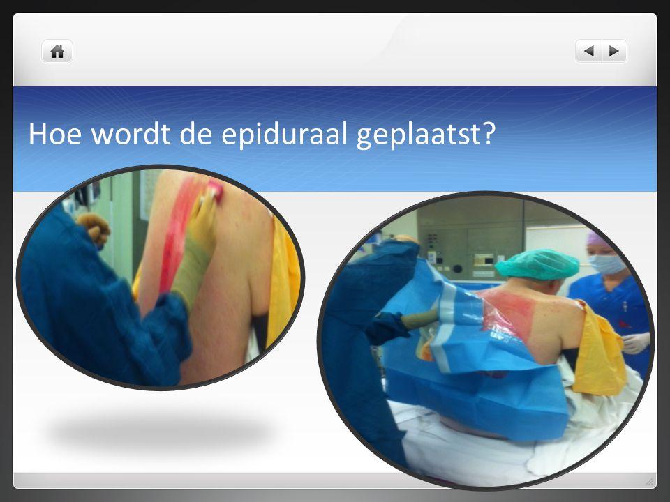 Hoe wordt de epiduraal geplaatst?
