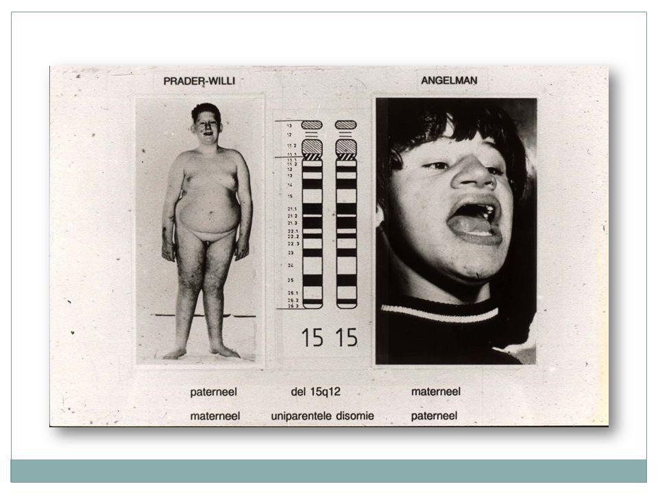 Syndroom van Coffin Lowry X gebonden Hypotonie en globale retardatie Dysmorfie, typische handen