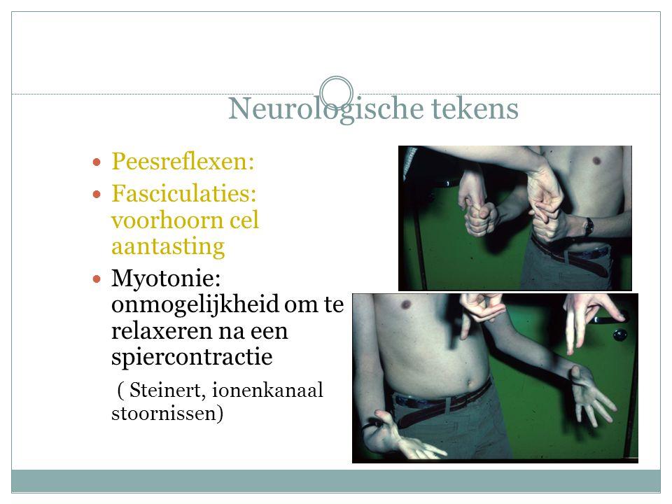 Neurologische tekens Peesreflexen: Fasciculaties: voorhoorn cel aantasting Myotonie: onmogelijkheid om te relaxeren na een spiercontractie ( Steinert, ionenkanaal stoornissen)