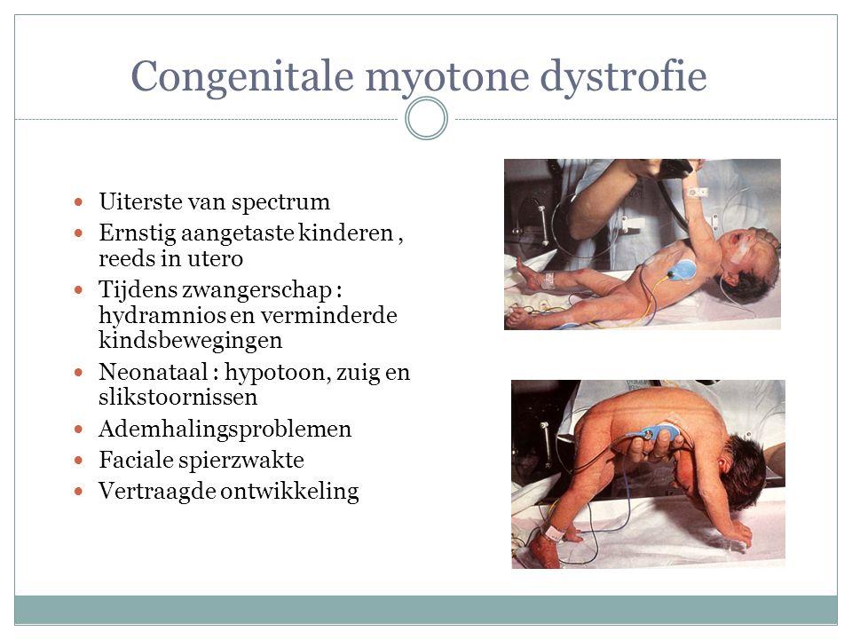 Congenitale myotone dystrofie Uiterste van spectrum Ernstig aangetaste kinderen, reeds in utero Tijdens zwangerschap : hydramnios en verminderde kinds