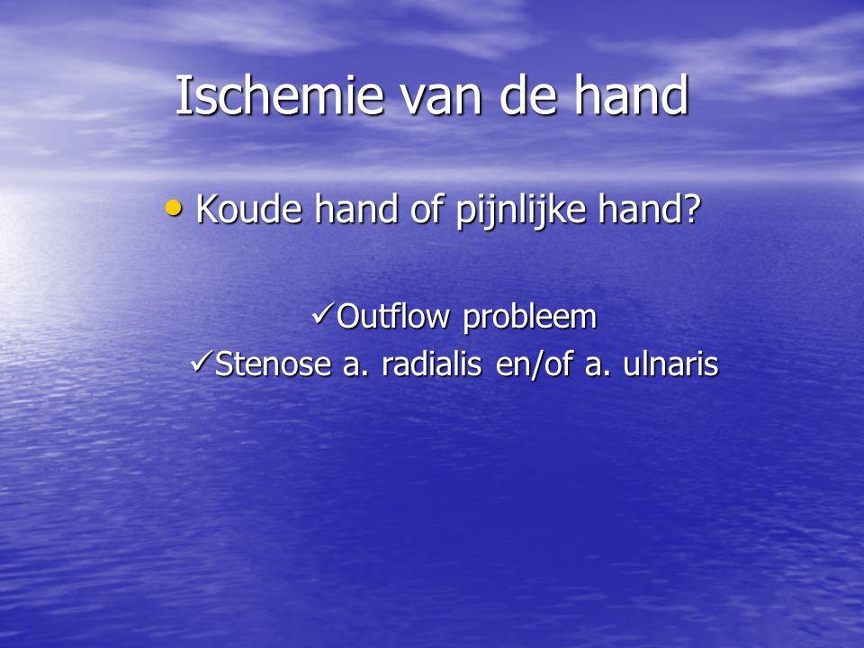 Ischemie van de hand Koude hand of pijnlijke hand? Koude hand of pijnlijke hand? Outflow probleem Outflow probleem Stenose a. radialis en/of a. ulnari