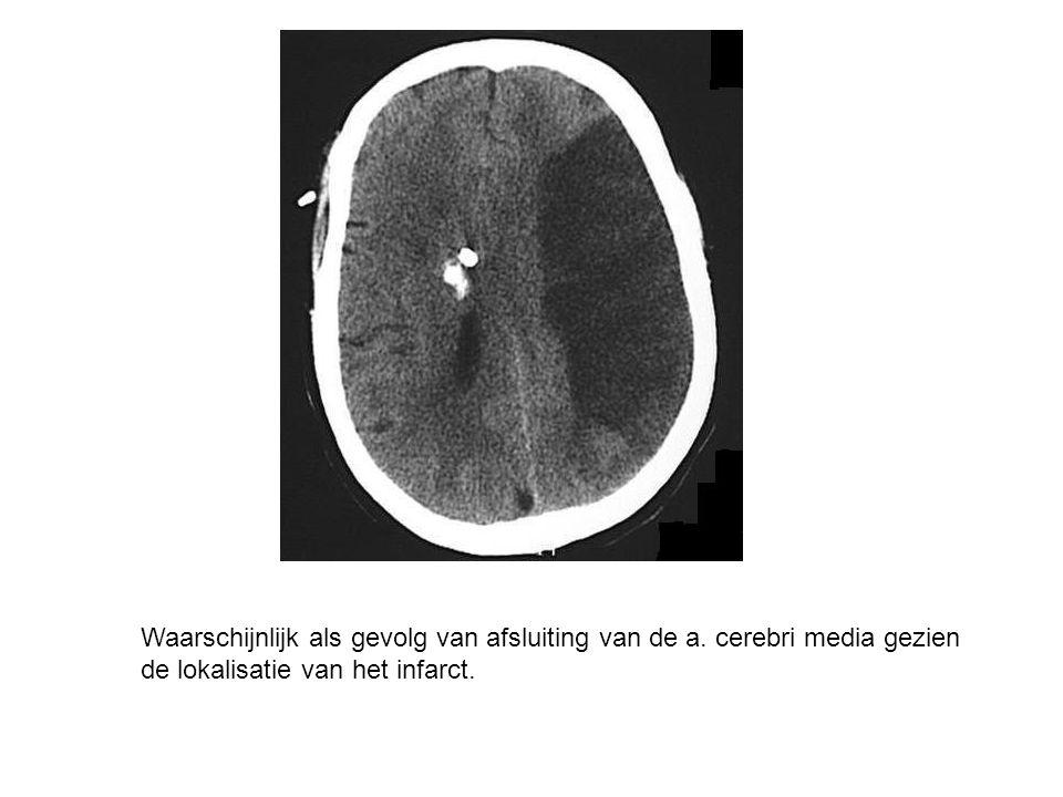 Waarschijnlijk als gevolg van afsluiting van de a. cerebri media gezien de lokalisatie van het infarct.