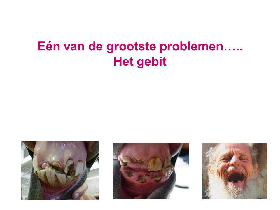 Eén van de grootste problemen….. Het gebit