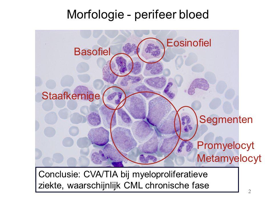2 Morfologie - perifeer bloed Eosinofiel Basofiel Segmenten Staafkernige Promyelocyt Metamyelocyt Myelocyt Conclusie: CVA/TIA bij myeloproliferatieve