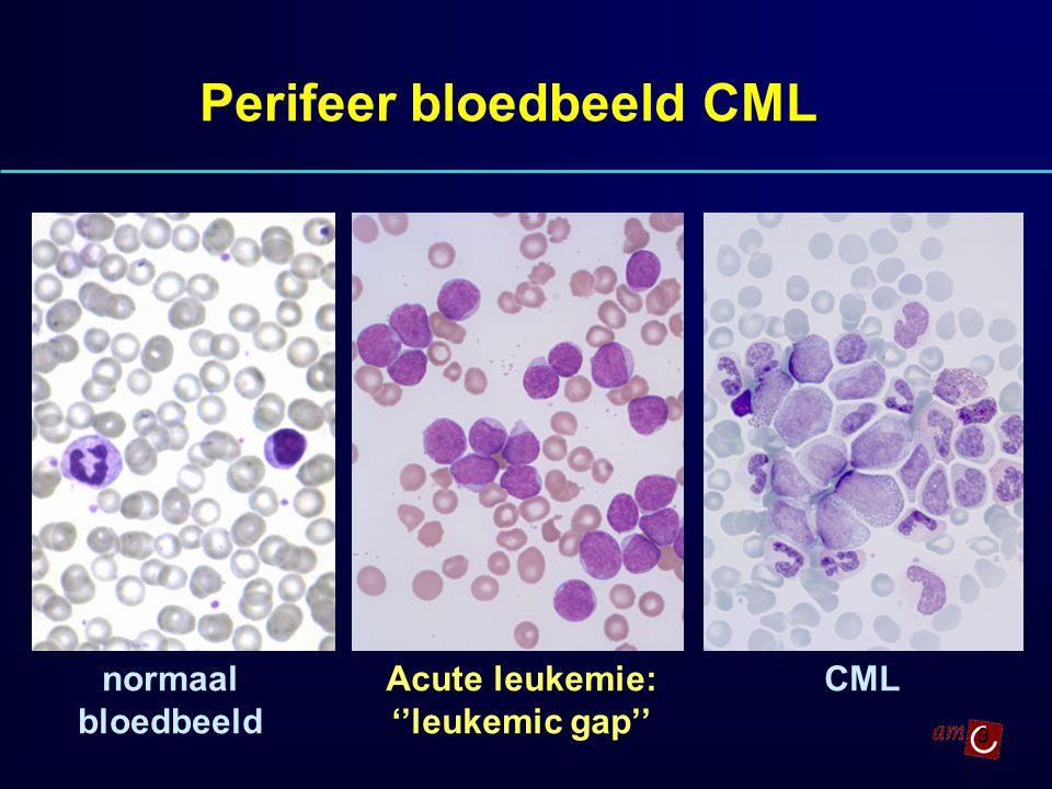 9 Perifeer bloedbeeld CML Acute leukemie: ''leukemic gap'' CMLnormaal bloedbeeld
