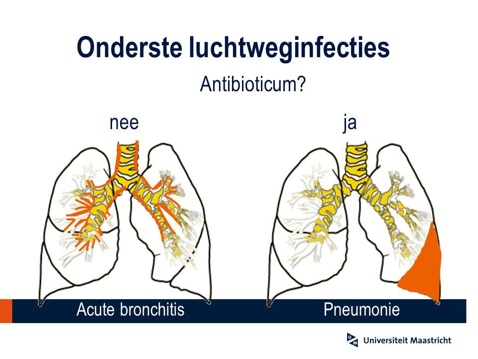 Onderste luchtweginfecties Antibioticum? neeja Acute bronchitisPneumonie