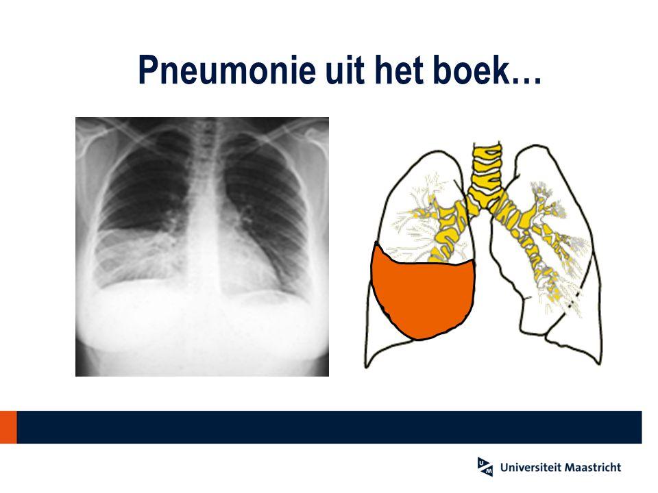 Pneumonie uit het boek…