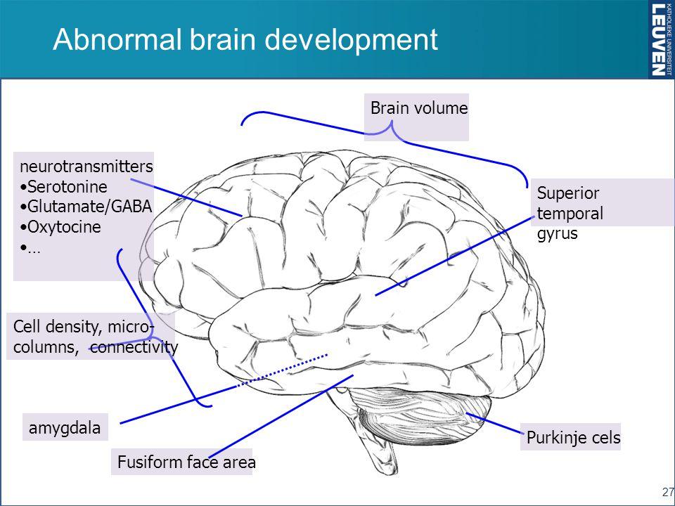 Abnormal brain development 27 amygdala Purkinje cels neurotransmitters Serotonine Glutamate/GABA Oxytocine … Superior temporal gyrus Brain volume Cell