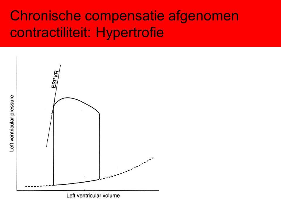 Chronische compensatie afgenomen contractiliteit: Hypertrofie