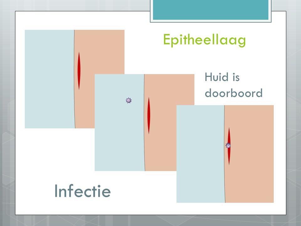 Huid is doorboord Epitheellaag Infectie