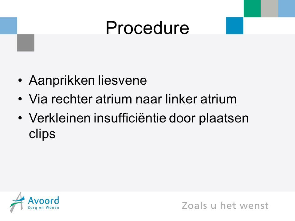 Procedure Aanprikken liesvene Via rechter atrium naar linker atrium Verkleinen insufficiëntie door plaatsen clips