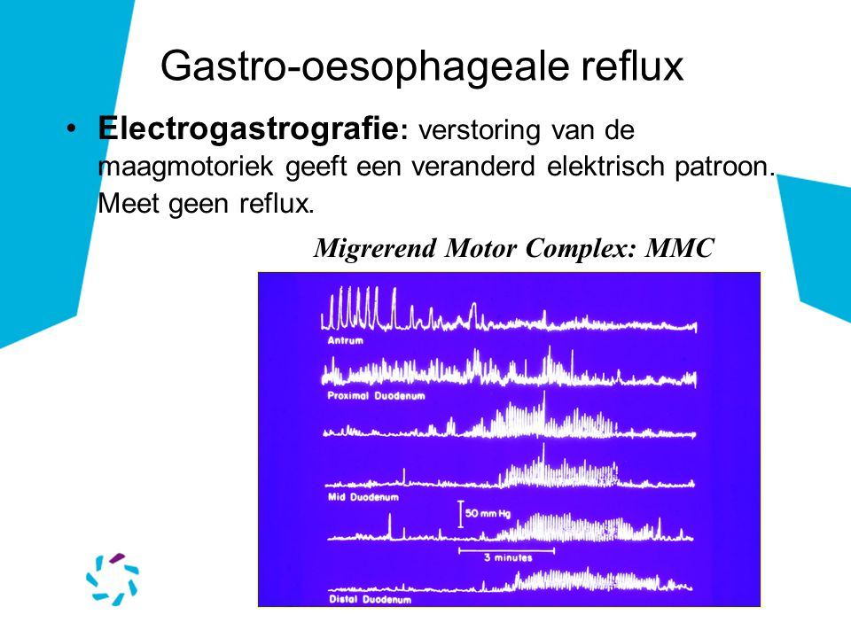 Electrogastrografie : verstoring van de maagmotoriek geeft een veranderd elektrisch patroon. Meet geen reflux. Gastro-oesophageale reflux Migrerend Mo