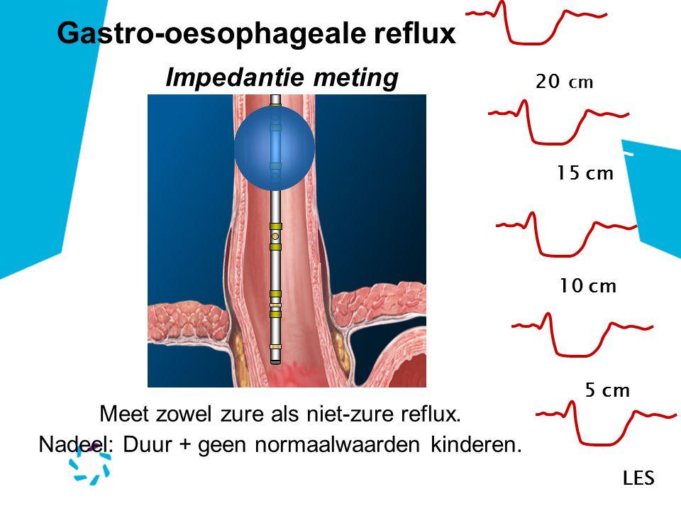 20 cm 15 cm 10 cm 5 cmLES Meet zowel zure als niet-zure reflux. Nadeel: Duur + geen normaalwaarden kinderen. Gastro-oesophageale reflux Impedantie met