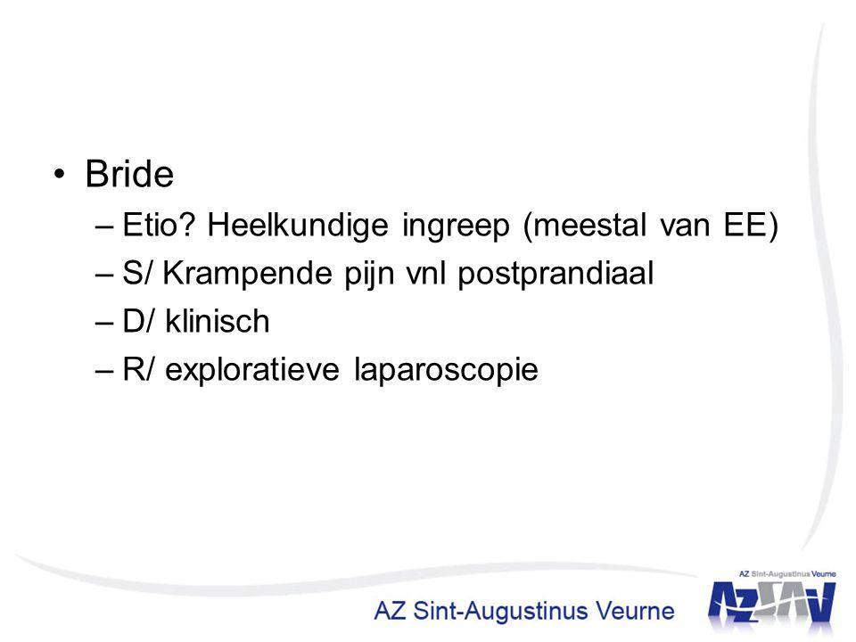 Bride –Etio? Heelkundige ingreep (meestal van EE) –S/ Krampende pijn vnl postprandiaal –D/ klinisch –R/ exploratieve laparoscopie