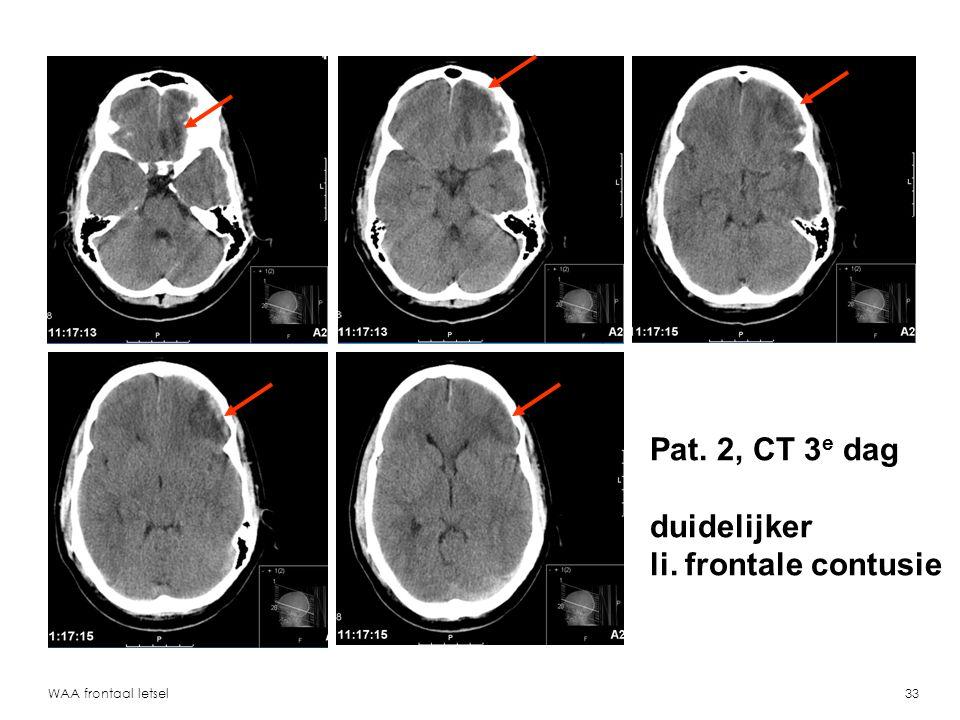 WAA frontaal letsel34 Pat. 2, T2 MR 2 mnd li. frontale contusie