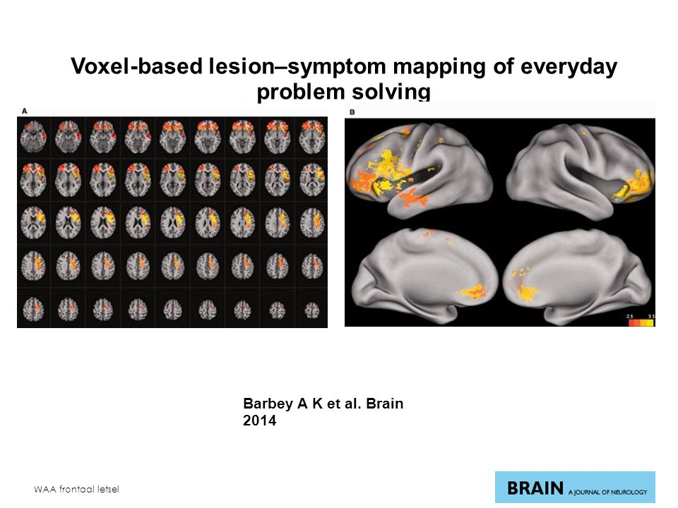 WAA frontaal letsel Voxel-based lesion–symptom mapping of everyday problem solving Barbey A K et al.