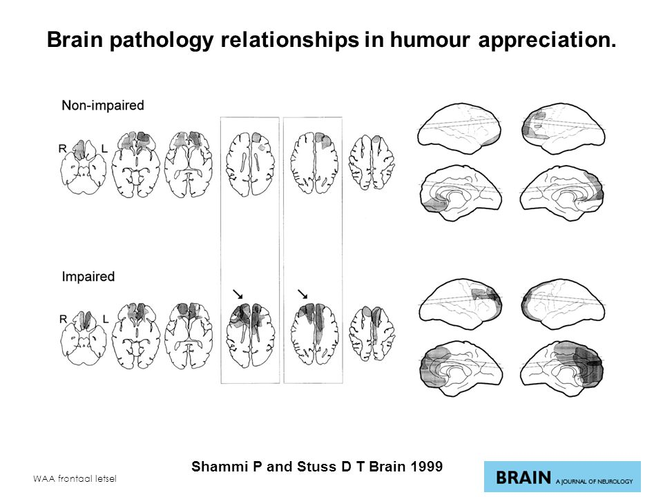 WAA frontaal letsel Brain pathology relationships in humour appreciation.