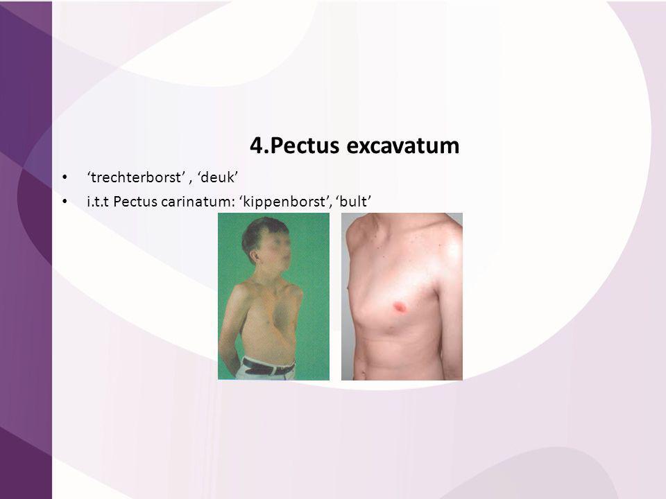 4.Pectus excavatum 'trechterborst', 'deuk' i.t.t Pectus carinatum: 'kippenborst', 'bult'