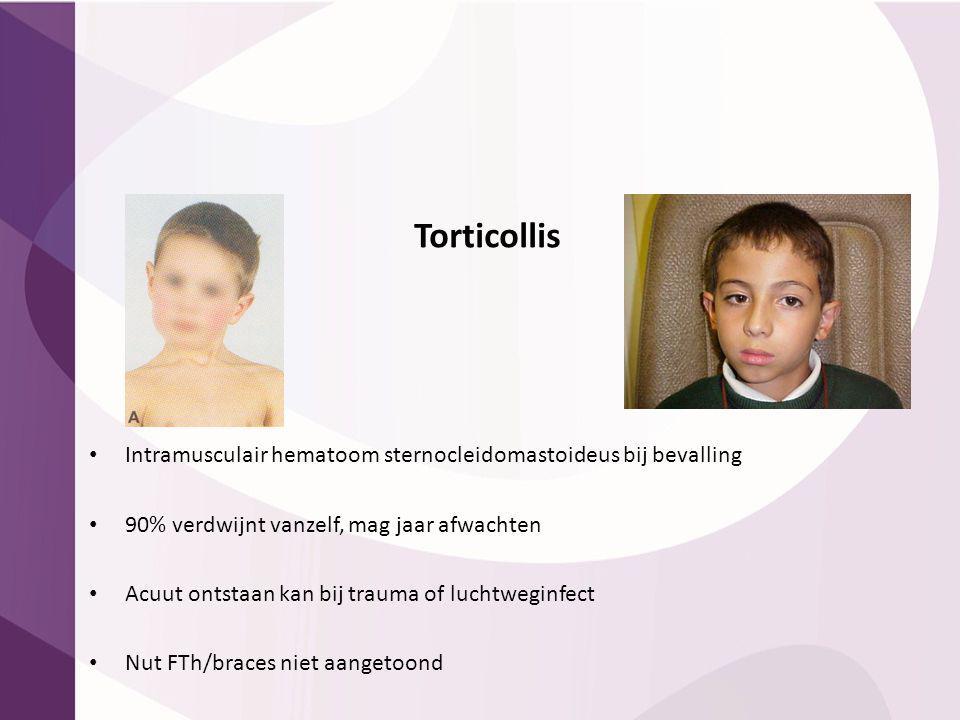Torticollis Intramusculair hematoom sternocleidomastoideus bij bevalling 90% verdwijnt vanzelf, mag jaar afwachten Acuut ontstaan kan bij trauma of lu