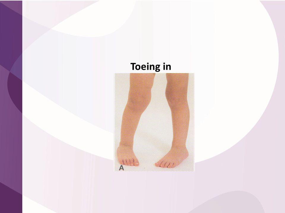 Toeing in