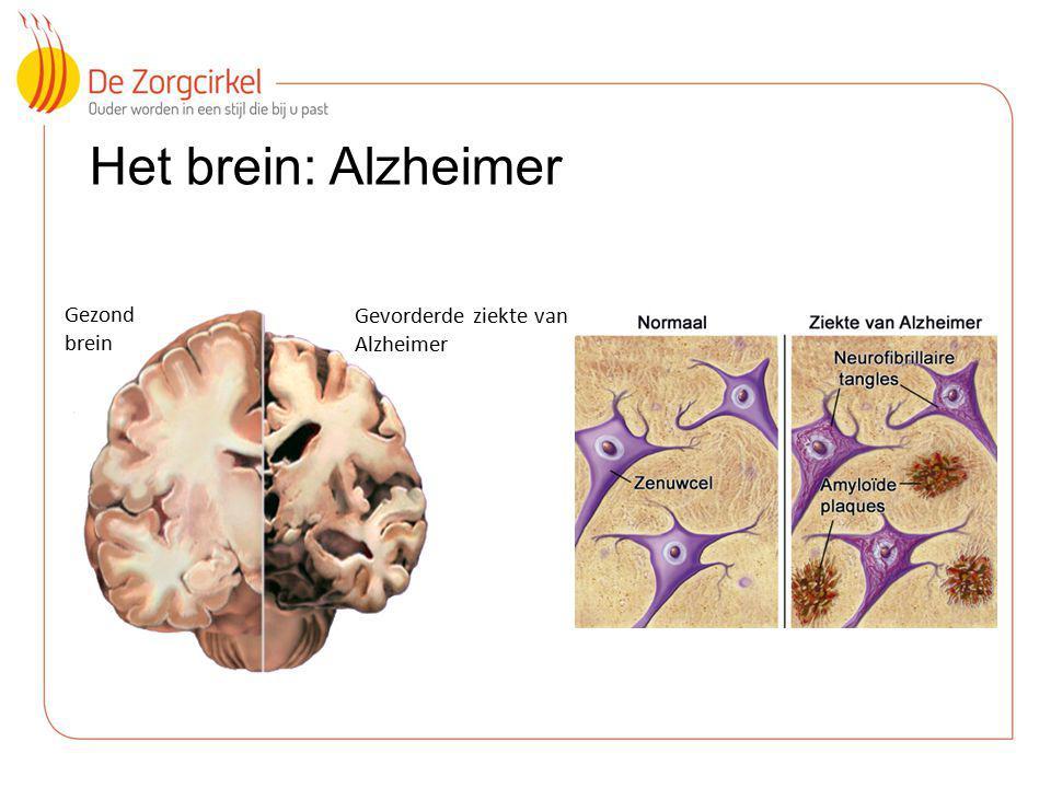 5 Het brein: Alzheimer Gezond brein Gevorderde ziekte van Alzheimer