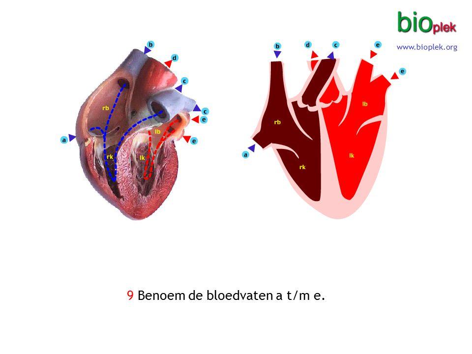 9 Benoem de bloedvaten a t/m e. www.bioplek.org