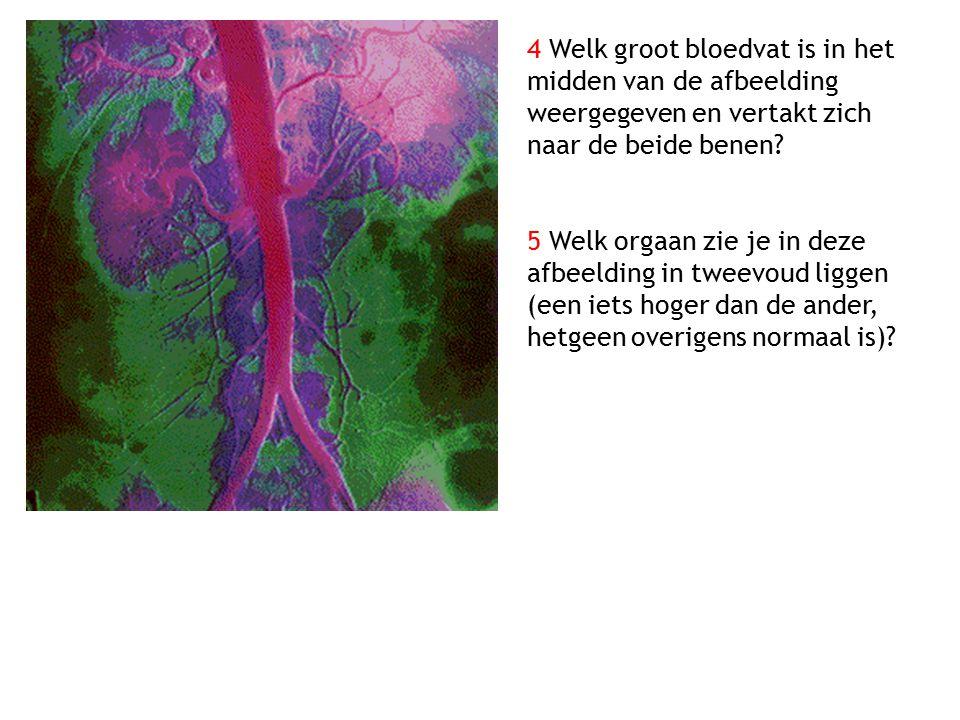 4 Welk groot bloedvat is in het midden van de afbeelding weergegeven en vertakt zich naar de beide benen? 5 Welk orgaan zie je in deze afbeelding in t