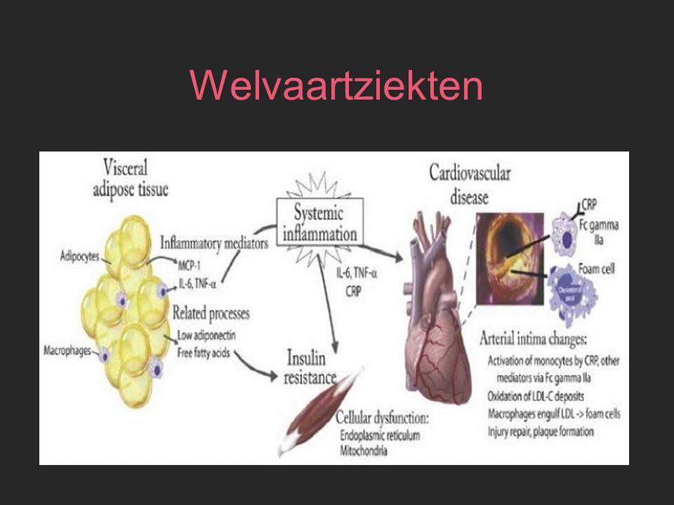 Welvaartziekten