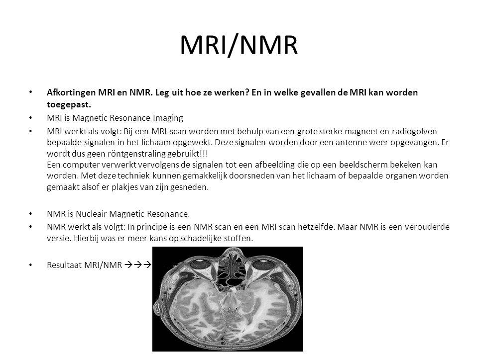 MRI/NMR Afkortingen MRI en NMR. Leg uit hoe ze werken? En in welke gevallen de MRI kan worden toegepast. MRI is Magnetic Resonance Imaging MRI werkt a