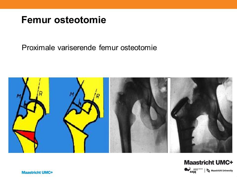 Femur osteotomie Proximale variserende femur osteotomie