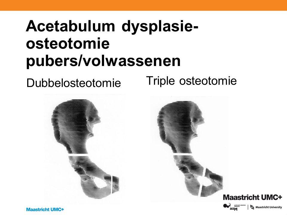 Acetabulum dysplasie- osteotomie pubers/volwassenen Dubbelosteotomie Triple osteotomie