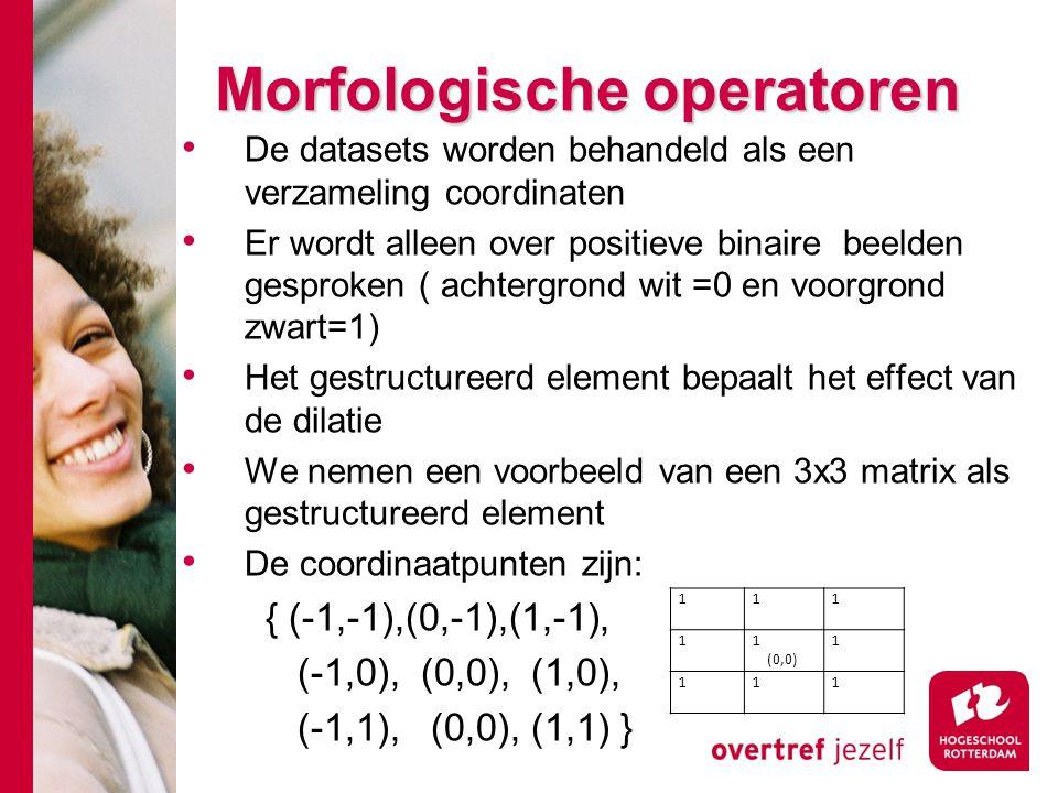 # Morfologische operatoren De datasets worden behandeld als een verzameling coordinaten Er wordt alleen over positieve binaire beelden gesproken ( ach