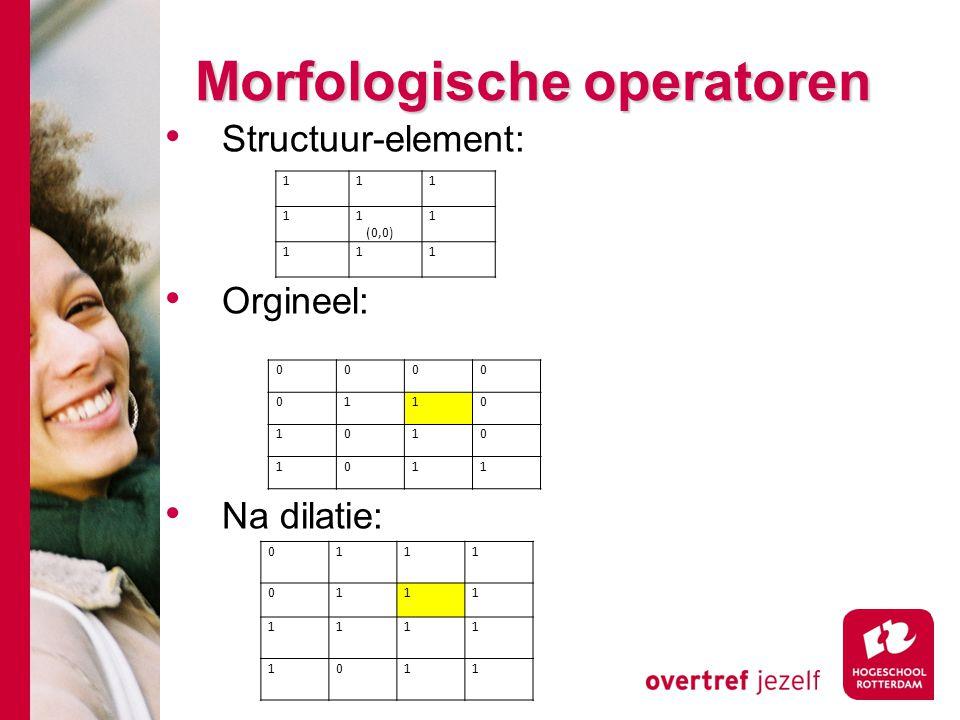 # Morfologische operatoren Structuur-element: Orgineel: Na dilatie: 111 11 (0,0) 1 111 0111 0111 1111 1011 0000 0110 1010 1011