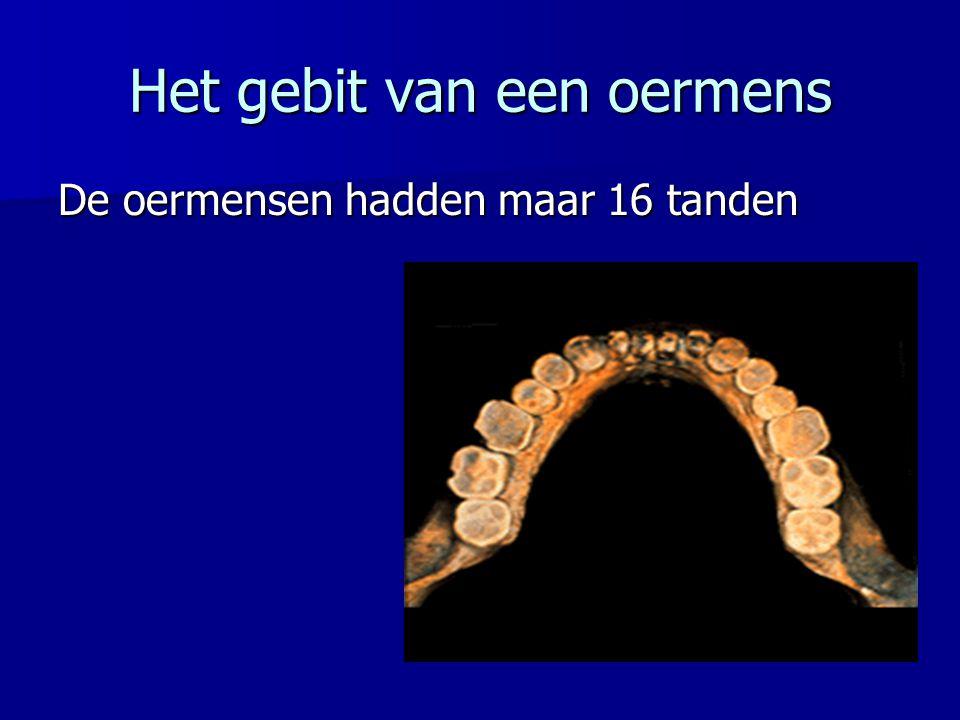 Het gebit van een oermens De oermensen hadden maar 16 tanden