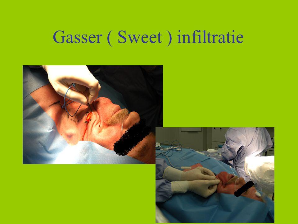 16 Gasser ( Sweet ) infiltratie 16