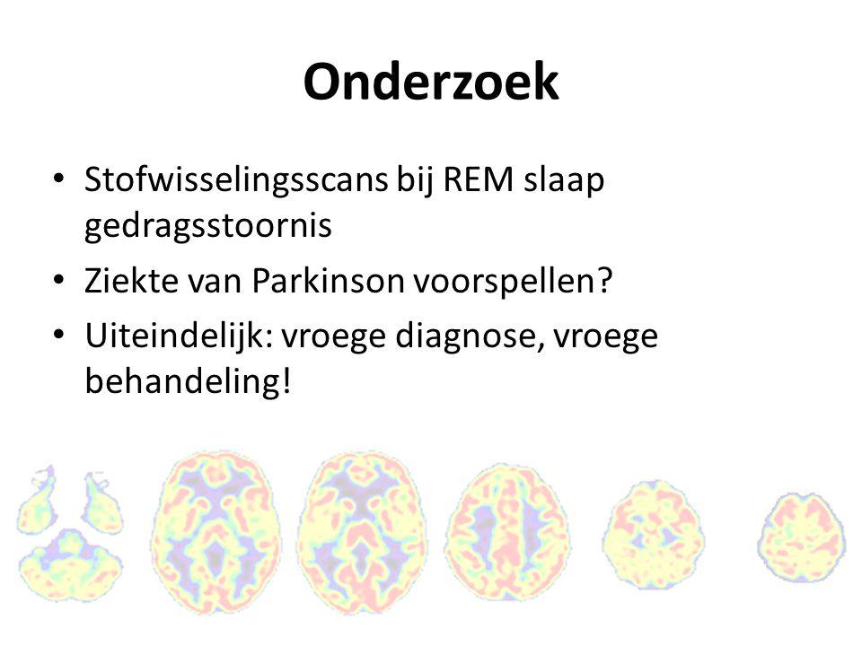 Eerste resultaten 20 patiënten met een REM slaap gedragsstoornis De stofwisselingsscans van patiënten met een REM slaap gedragsstoornis lijken op die van Parkinson patiënten