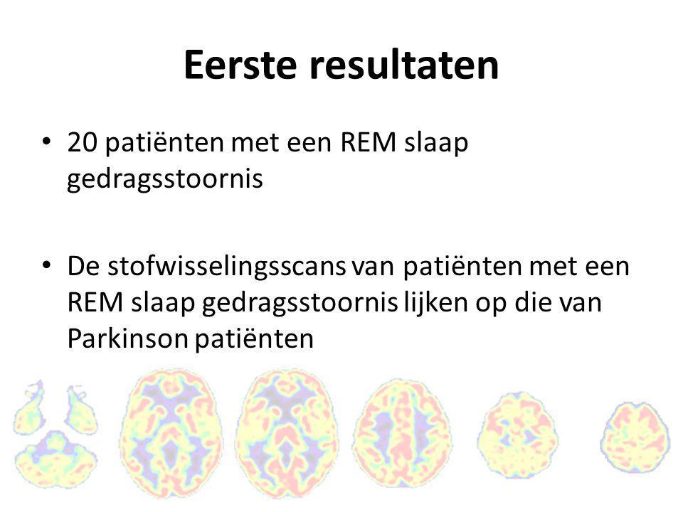 Eerste resultaten 20 patiënten met een REM slaap gedragsstoornis De stofwisselingsscans van patiënten met een REM slaap gedragsstoornis lijken op die