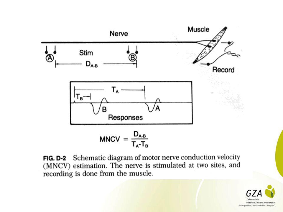 Zenuwgeleidingsonderzoek: pathologie Axonaal verlies Demyelinisatie Homogeen Focaal: Conductieblock
