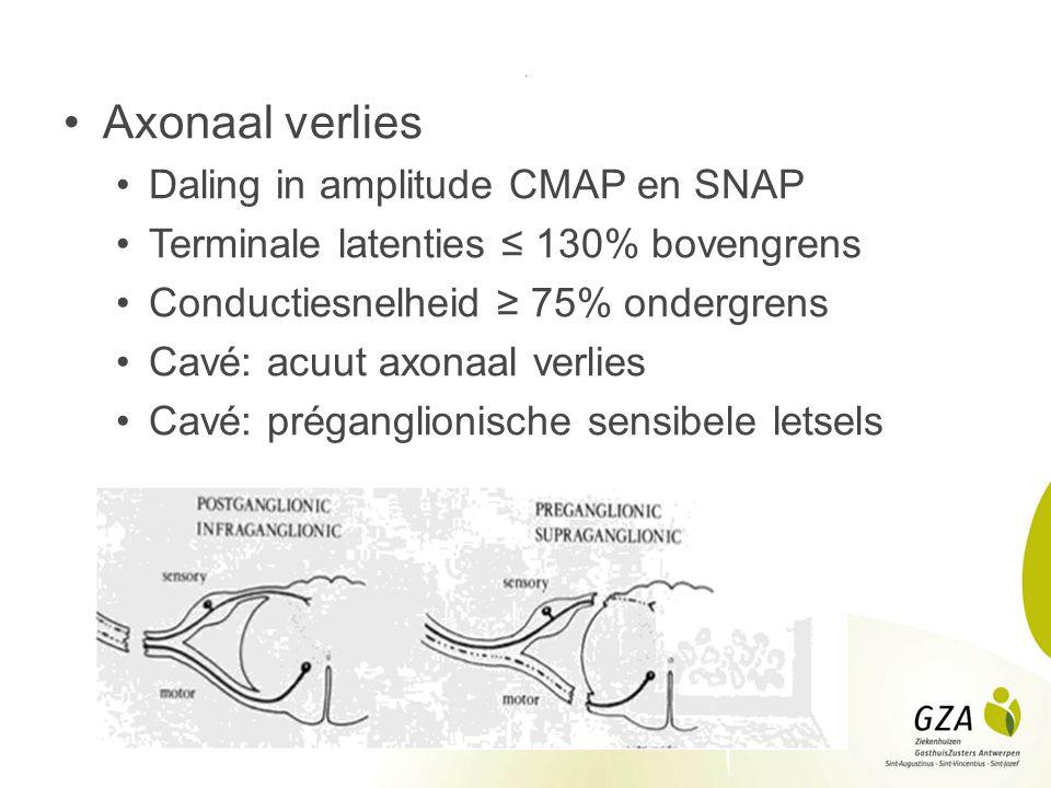 . Axonaal verlies Daling in amplitude CMAP en SNAP Terminale latenties ≤ 130% bovengrens Conductiesnelheid ≥ 75% ondergrens Cavé: acuut axonaal verlie